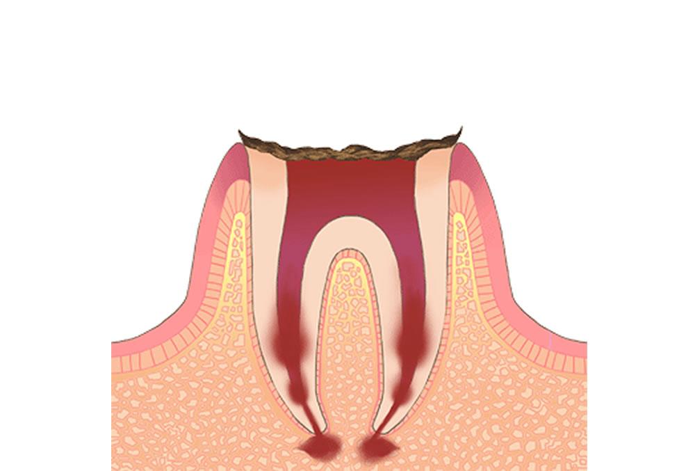 歯根のみが残った末期の虫歯
