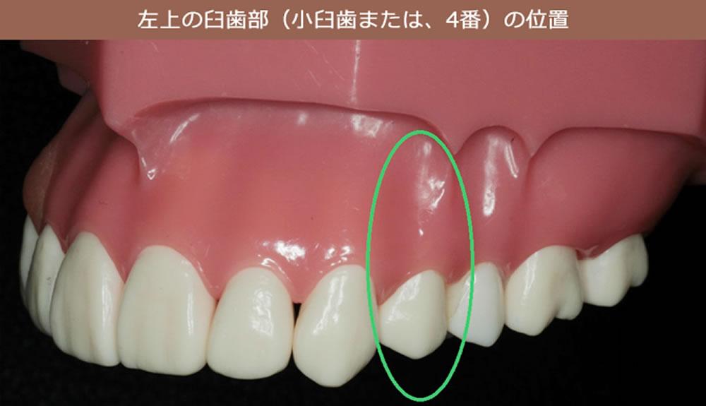 臼歯部の根管治療