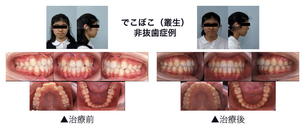 でこぼこ(叢生) 非抜歯症例