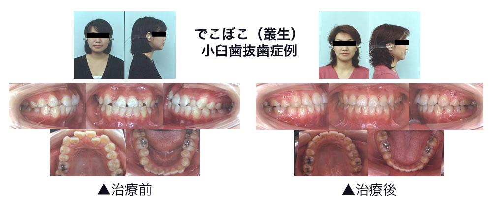でこぼこ(小臼歯抜歯症例)