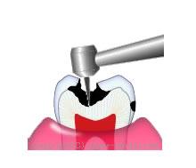 むし歯の部分を削る