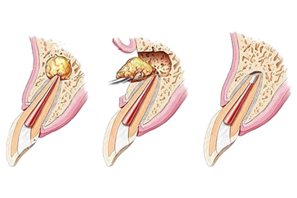 歯根端切除や再植術