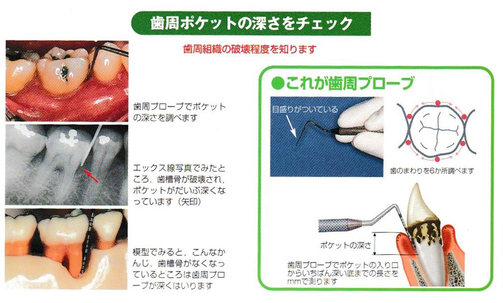 歯周病検査について