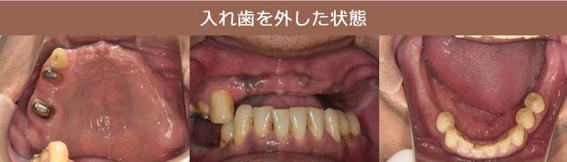 入れ歯を外した状態