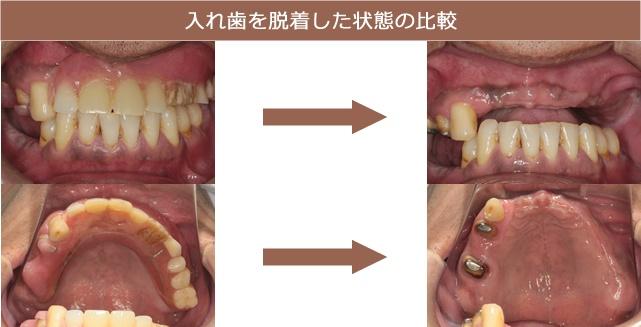 入れ歯を脱着した状態