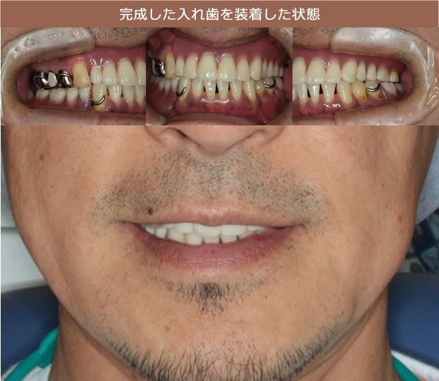 完成した入れ歯を装着