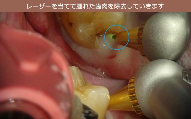レーザーで歯肉除去