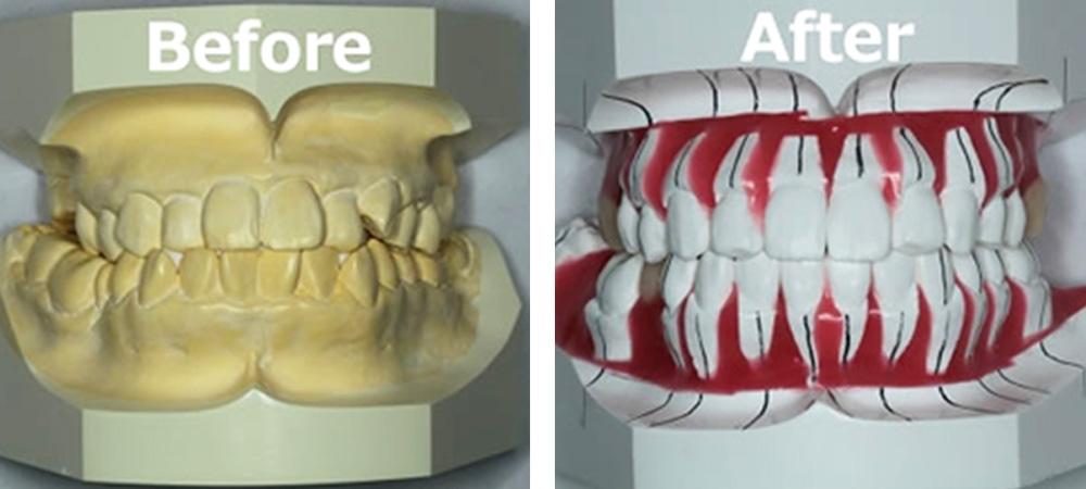 歯並びのシミュレーション
