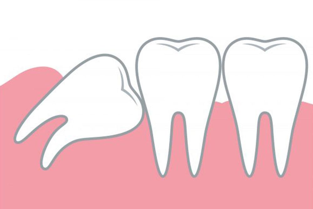 歯列や咬み合わせを乱す場合