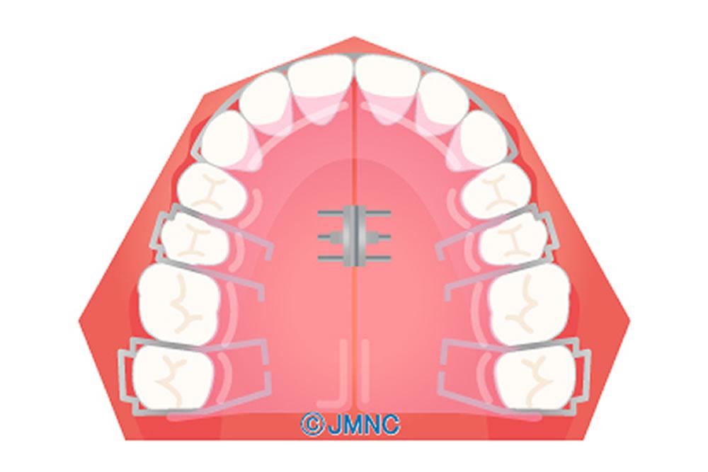 乳歯・混合歯列期の矯正治療