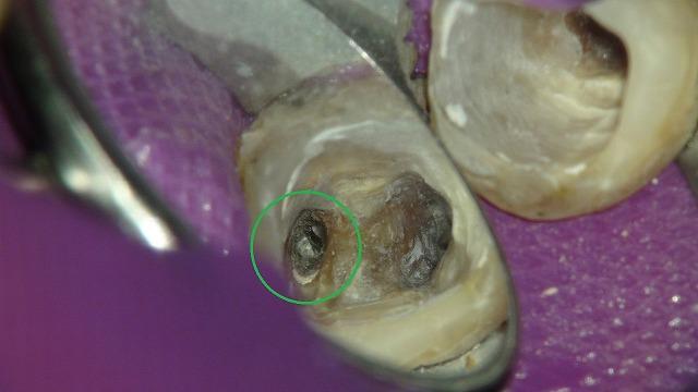 折れたリーマー(ファイル)の除去している根管治療の症例写真3